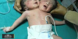 Baby With Two Heads Born In Bangladesh