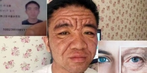 Mysterious Ageing Disease Makes Young Man Look Like Pensioner - Rare Conditions