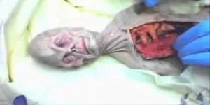 shocking video of alien autopsy in Russia in 1969 UFO OVNI. (autpsia a alien en rusia en 1969)
