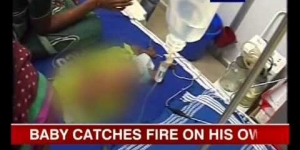 3-month-old baby bursts into flames whenever he sweats